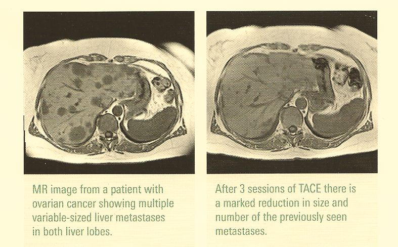 TACE Trans aterial chemoembolisation German Cancer Treatments