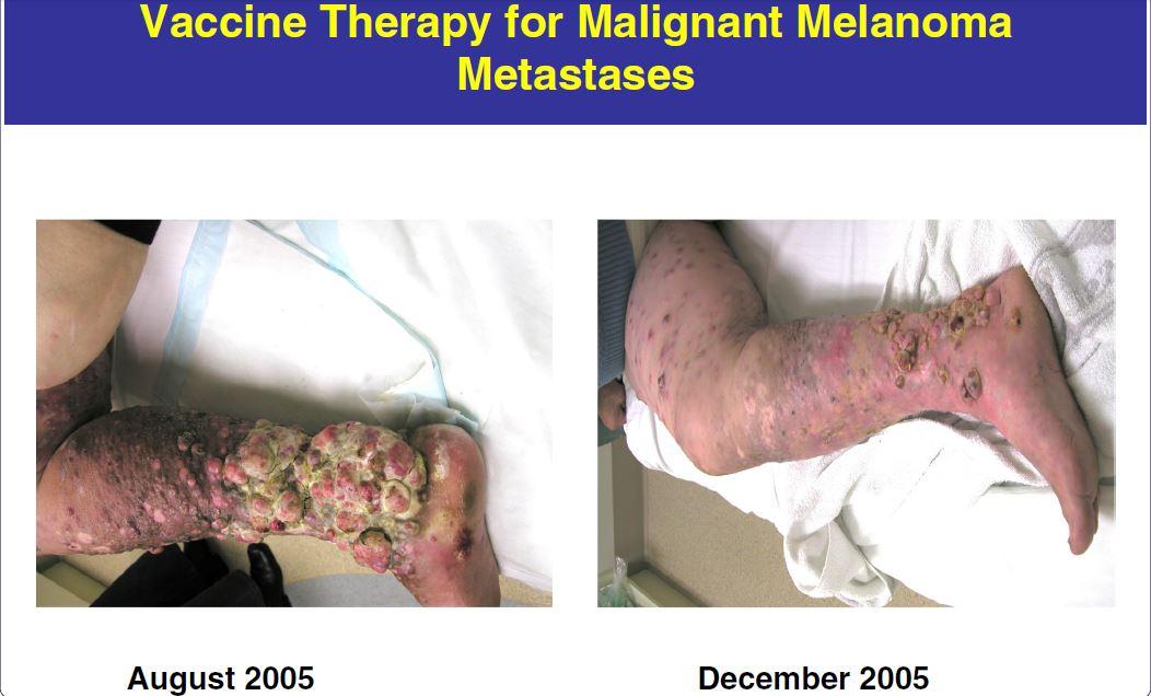 Melanoma vaccines