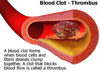 blood_clotting (4)