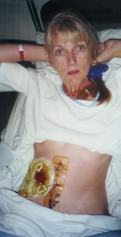 Me after 1st ileostomy and colectomy in 2000
