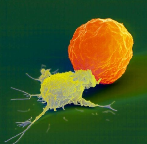 "A Natural Killer cell (yellow) attacks a cancer cell. The NK cell reaches out and delivers the ""kiss of death."""