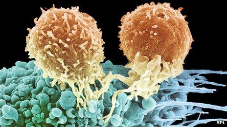 T lymphocytes (orange colour) assembling to kill cancer