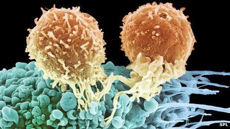 T lymphocytes (orange colour) assembling to kill cancer